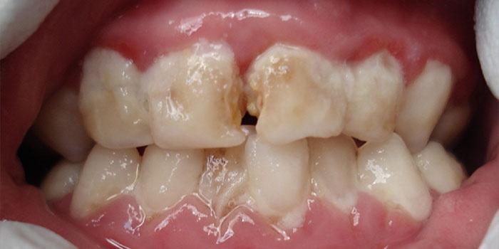 Шатаются зубы: причины, при беременности, у