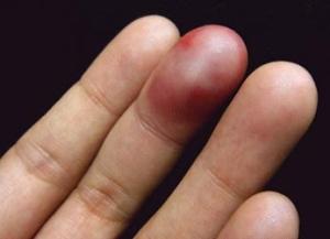 Когда сломал палец на руке что делать в домашних условиях 87